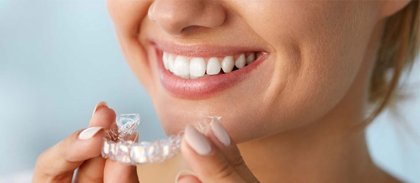 Advantages Using Invisalign