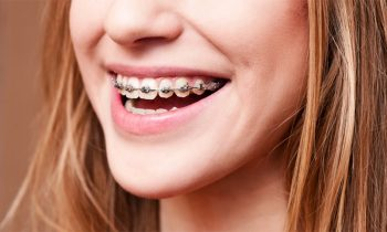 dental braces services