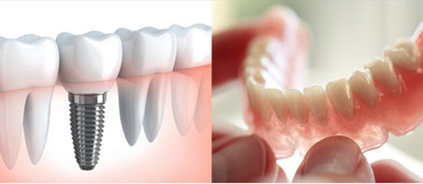 Dental Implants Vs Dentures