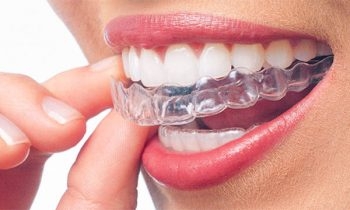 invisalign tips