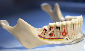 root canal treatment services