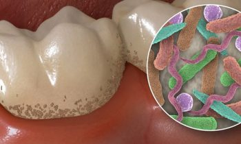 tooth plaque bacteria